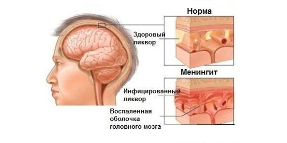 При оргазме невыносимая головная боль